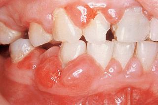 Les maladies parodontales flumet 73590 en savoie for Abces buccal traitement maison
